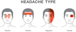 diagram of migraine headaches    migraine    or tension  know the different types of    headaches        migraine    or tension  know the different types of    headaches
