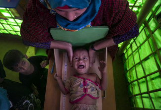 Image: A Rohingya refugee is measured at a malnutrition center