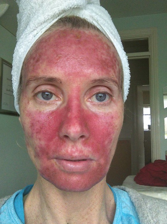 Actinic Keratosis Woman Shows Treatment With Painful Photos