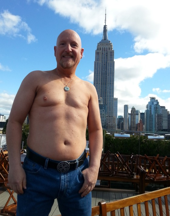 Male Breast Cancer Patient Speaks About Diagnosis Treatment