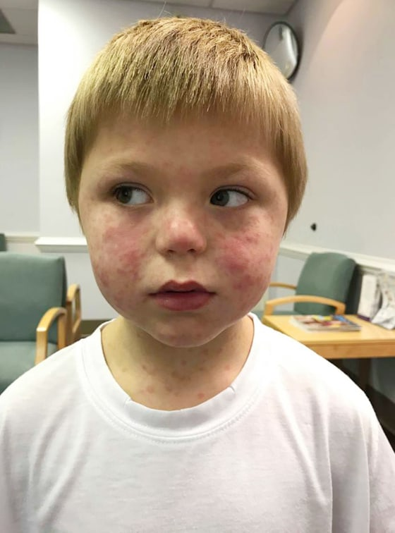 Rocky Mountain Spotted Fever rash