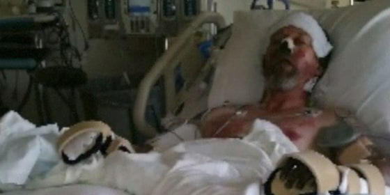West Bend lost both hands and both lower legs to amputation to save his life.