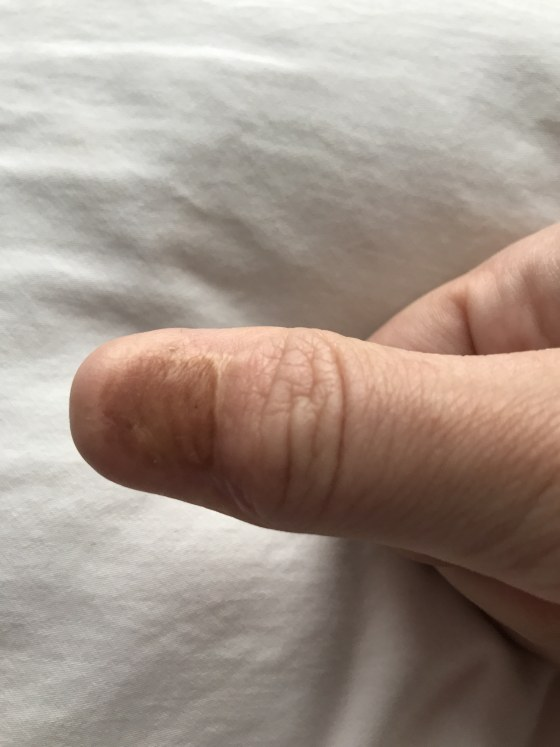 What Does Nail Melanoma Look Like Skin Cancer Can Hide As Line On Nail