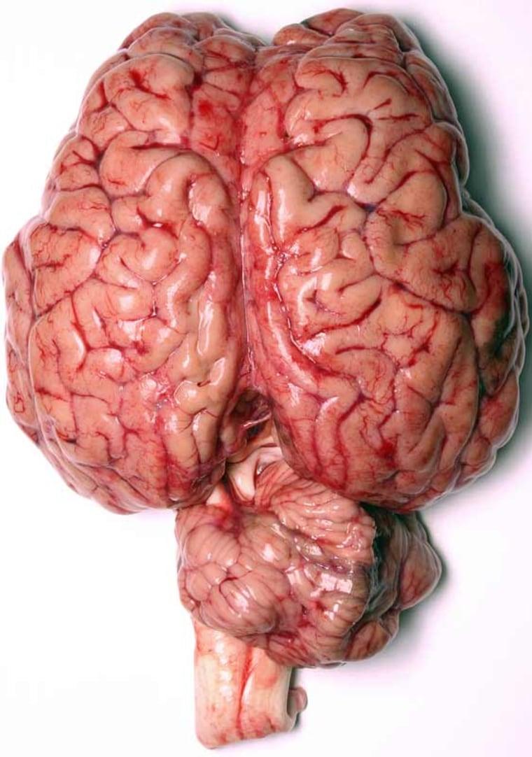 Image: Human brain
