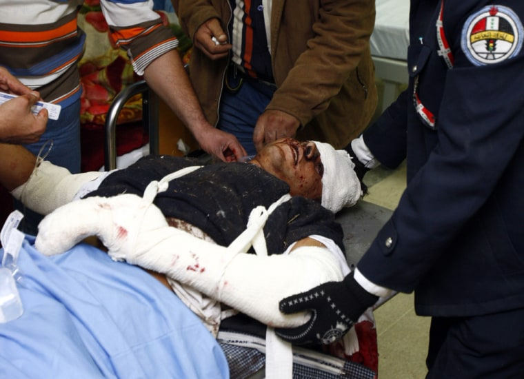 Image: A traffic policeman who was wounded in a bomb attack lies in a hospital in Baghdad