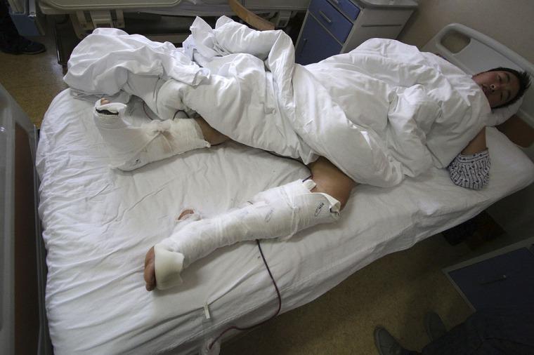 Image: A man attacked by panda Gu Gu