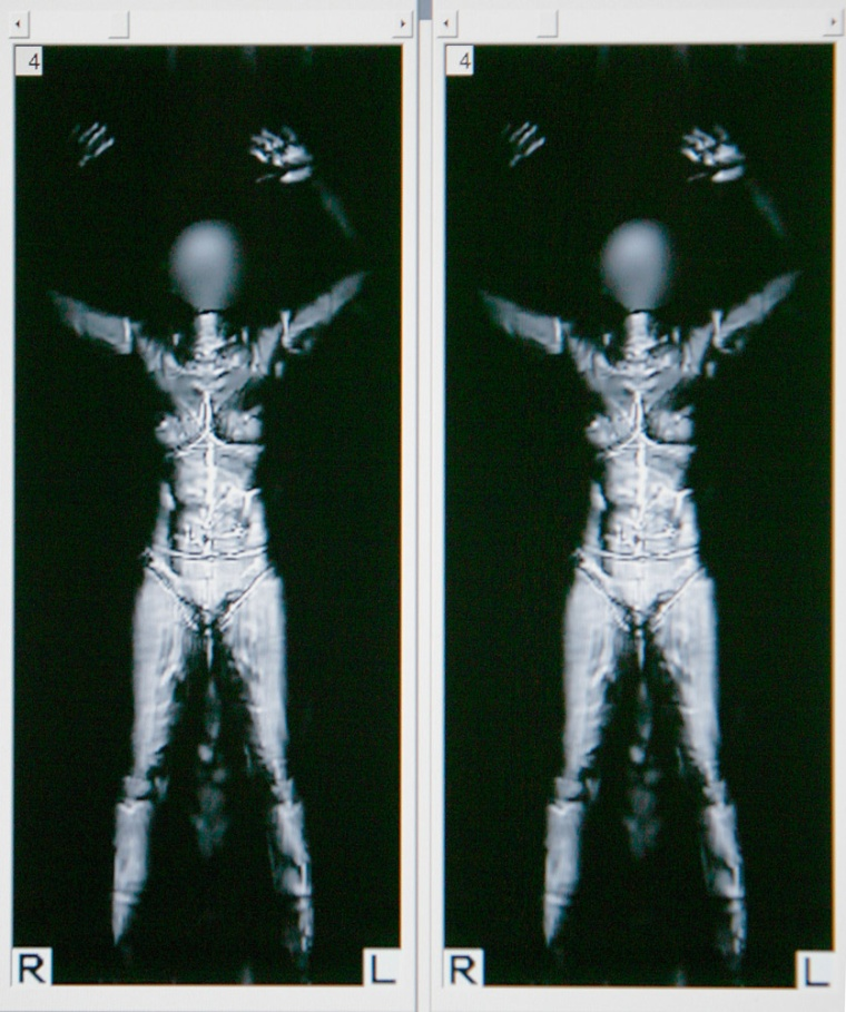 Image: full body scanner image