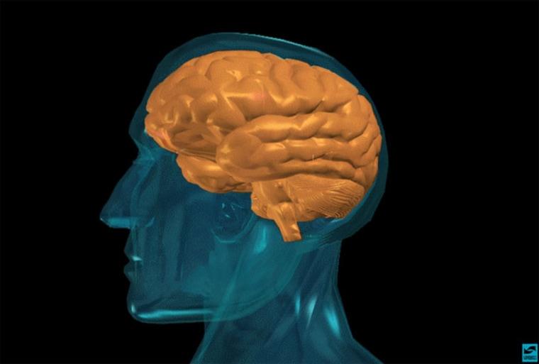 Image: The human brain