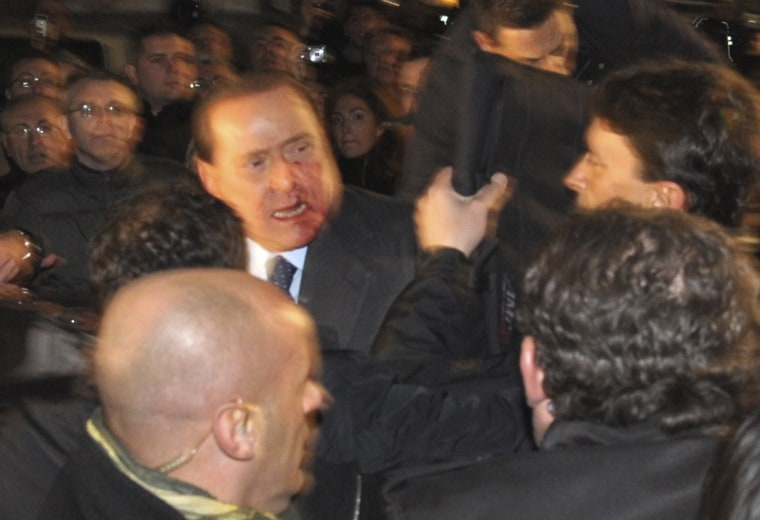 Image: Italy's PM Berlusconi leaves Duomo's square in Milan with blood on the face