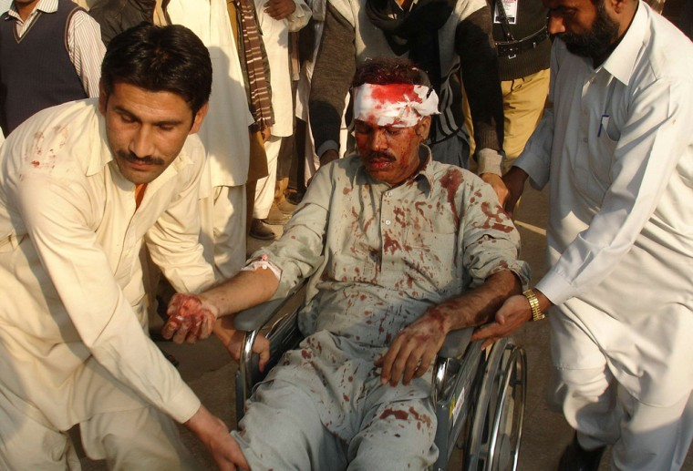 Image: A man injured by a bombing