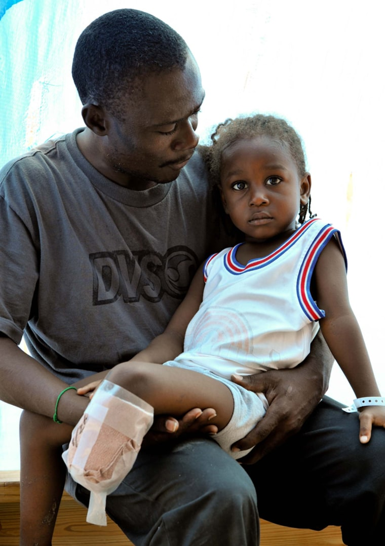 Doctors at Good Samaritan Hospital in Jimani, Dominican Republic, had to amputate 4-year-old Schneily Similien's lower leg because of injuries suffered in the Haiti earthquake. His father, Ducarmel Similien, says he will do whatever it takes to geta prosthetic leg for his boy.