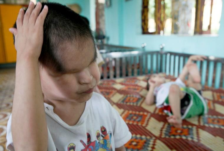 Image: Nguyen Tuan Tu, a second generation Agent Orange victim who was born without eyes