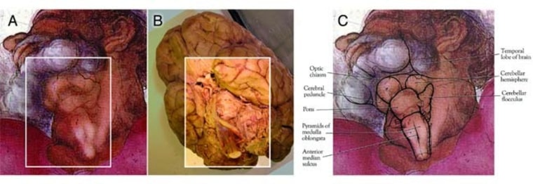 Image: Pictures of brain and Michelangelo's depiction of God's throat