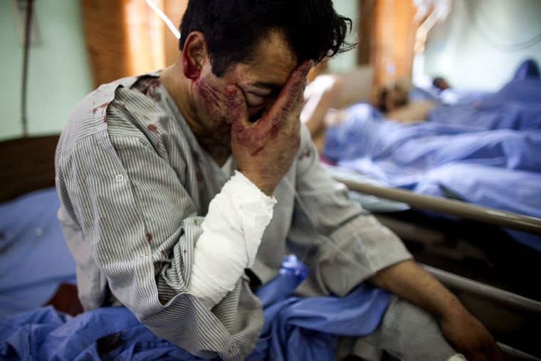 Image: Suicide bomb attack in Kabul