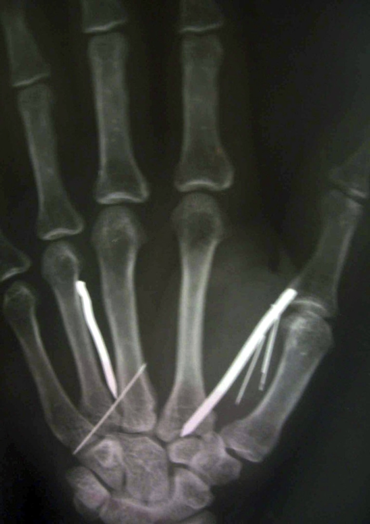 Image: The detail of an X-ray film held up by a doctor shows nails driven into the hand of a Sri Lankan housemaid