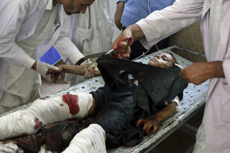 Image: Afghan boy who was wounded after a rocket attack in Kunar province is being treated at a hospital in Jalalabad