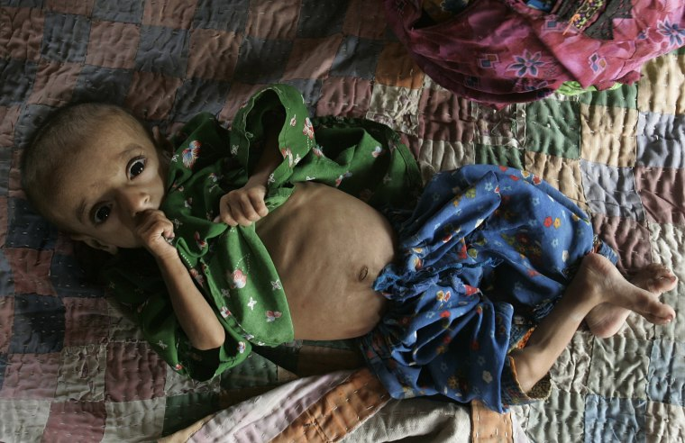 Image: Malnourished Pakistani girl
