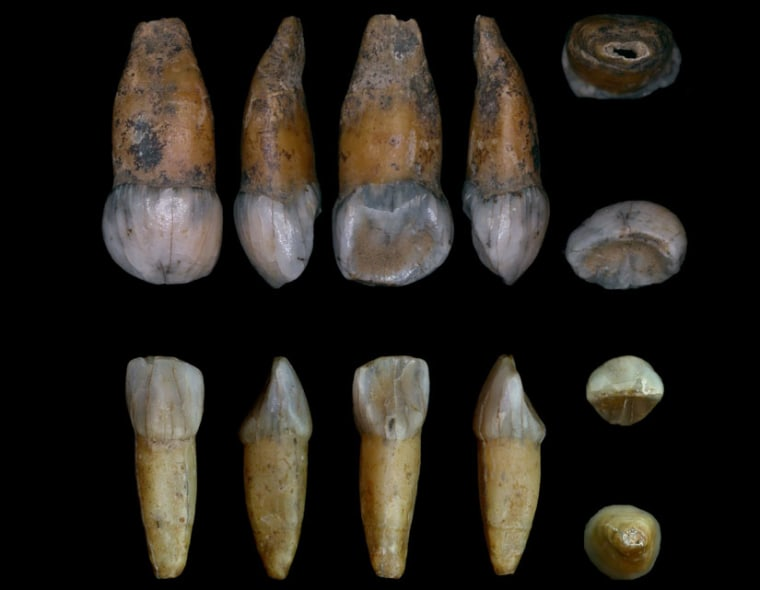 Image: Teeth from newly discovered Neanderthal infant
