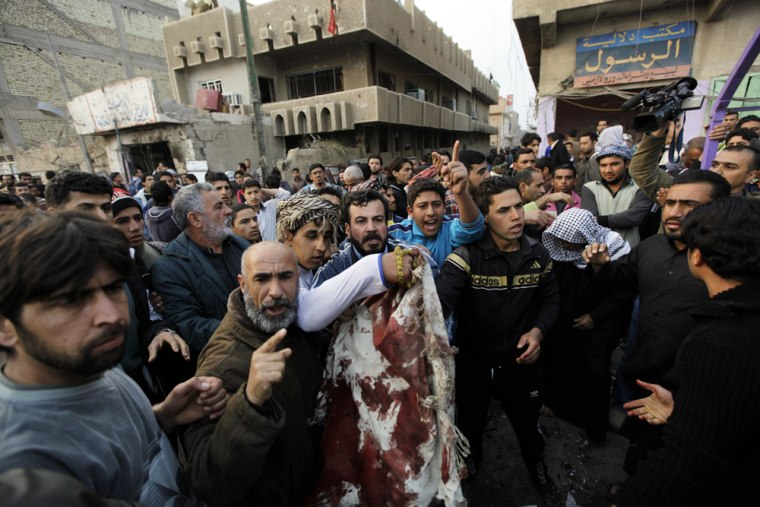 Image: Residents show the media the bloody clothes of a bomb attack victim in Baghdad'