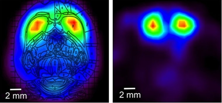 PET scans of a rat's brain made with the RatCAP scanner (horizontal view superimposed on a rat brain atlas figure, left, and a coronal slice, right). Redder colors indicate higher and violet colors lower levels of a radiotracer that binds to dopamine receptors.