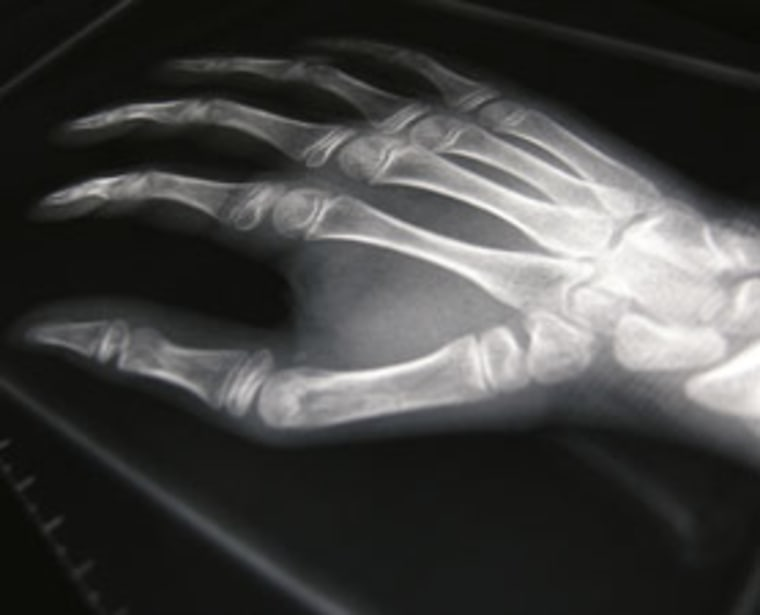One of the earliest X-rays of human anatomy was an image of the hand of a 21-year-old woman, revealing the bones inside. It was taken in 1896 in the Netherlands.