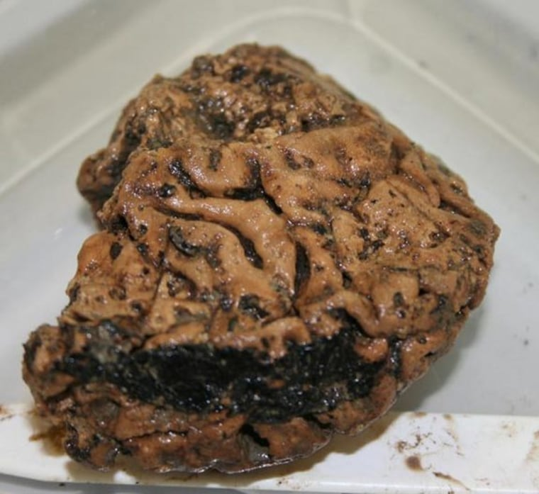A piece of the preserved Heslington brain after it was removed from the skull in which it was found. The skull has been dated to between 673 and 482 B.C.