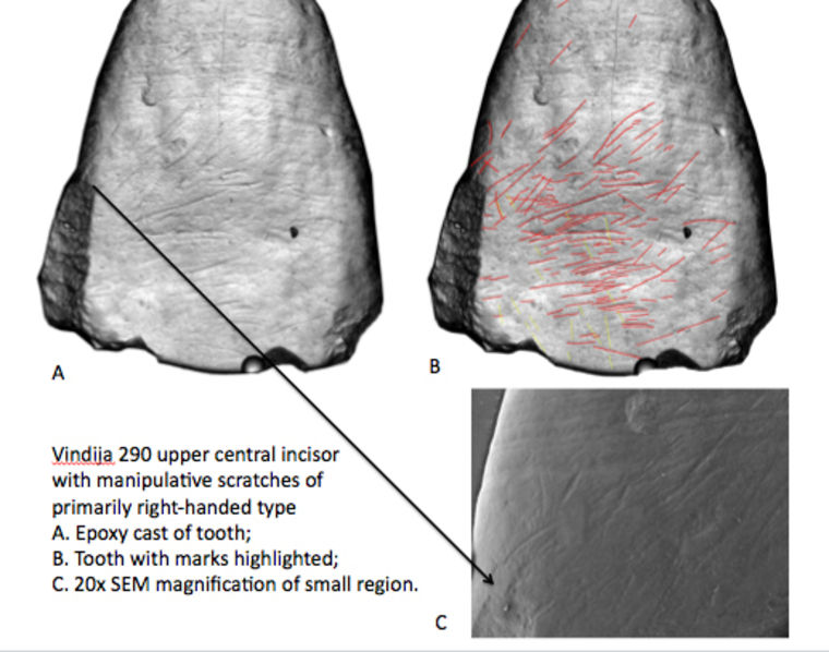 Image: Scratch marks on the teeth of ancient humans