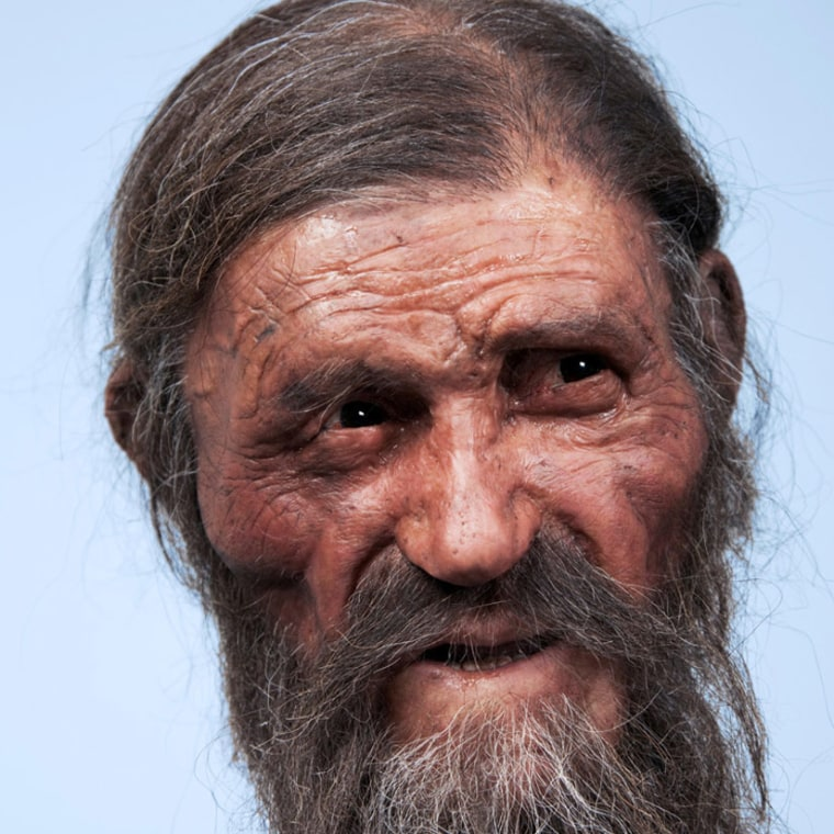 A reconstruction of the Iceman's face, as crafted by Dutch experts, Alfons and Adrie Kennis. New analysis shows the Iceman had bad teeth.