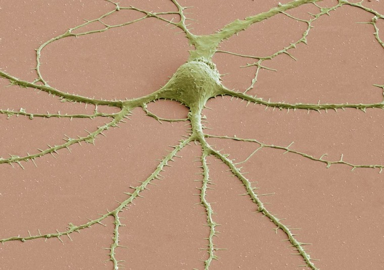Most neurons have three parts: an axon, a cell body called a soma and dendrites. This scanning electron microscope (SEM) image shows a soma with dendrites (and their spines) radiating from it. To create SEM images, a beam of electrons is scanned across the surface of a sample, and a detector keeps track of electrons bouncing off its surface to reveal the specimen's outer shape.