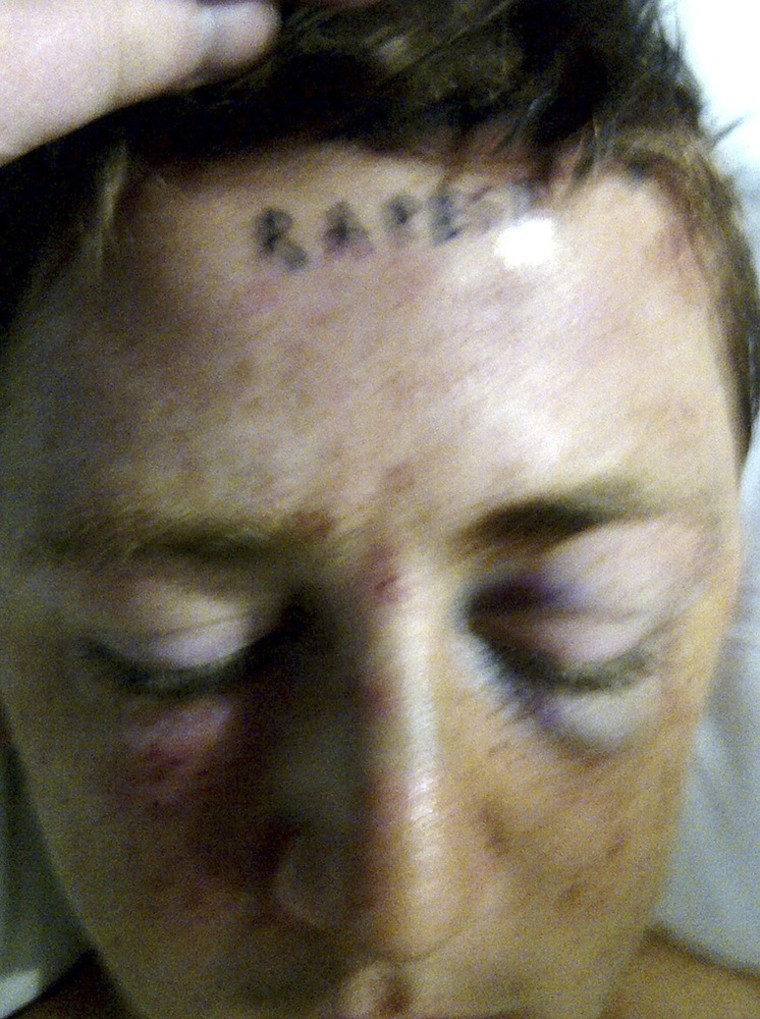 "Image: In this photo provided by Lucy Ford, the word ""rapest"" is pictured tattooed on the forehead of her son, Stetson Johnson"