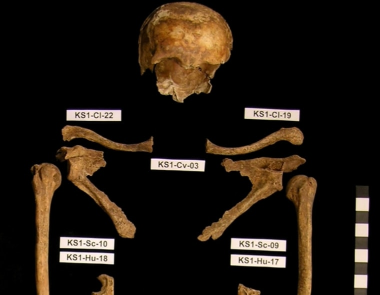 The remains of one man found in a mass grave in Kassel, Germany. The 18 individualsAnna Zipp of Gottingen Universityand her colleagues studied were all male, and are believed to have been soldiers in the Napoleonic Wars. Genetic analysis found evidence of the bacterium that causes trench fever in three of the men.