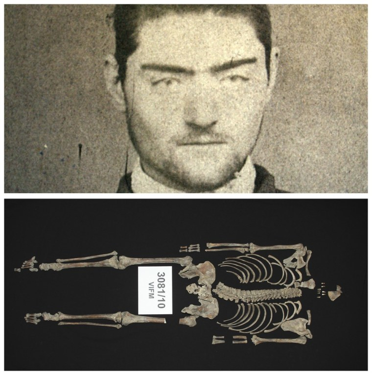 Image: A combination photo shows an photograph of Ned Kelly, and his headless remains in Melbourne