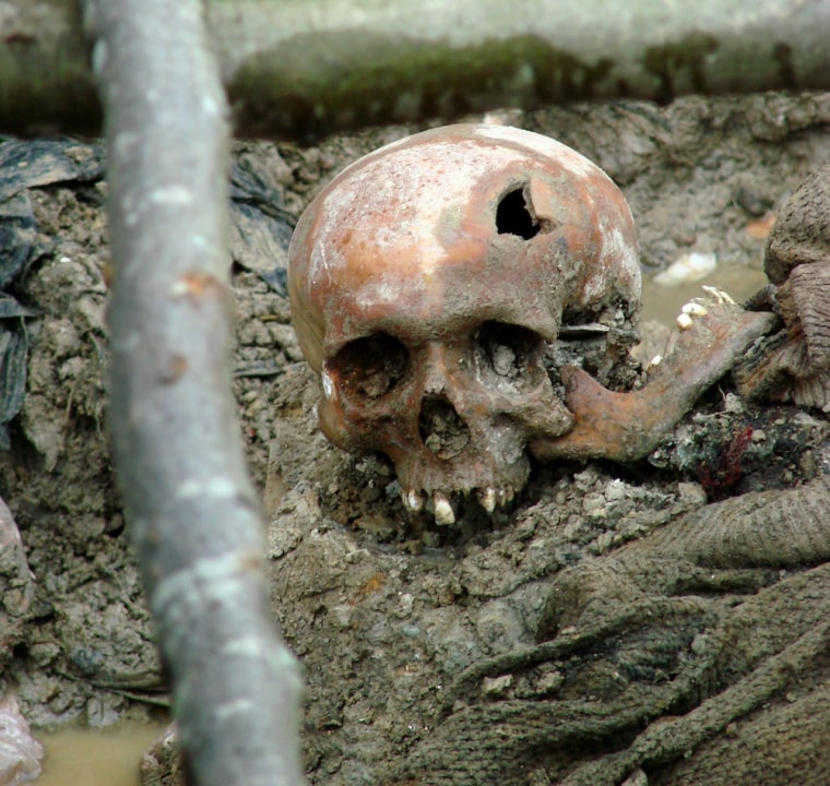 The skull of a victim of the 1995 genocide at Srebrenica. This photo was taken in 2007 at a mass grave exhumed outside of the village of Potocari in Bosnia and Herzegovina.
