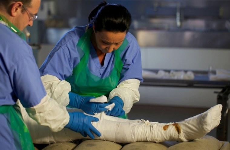 Image: Mummified leg