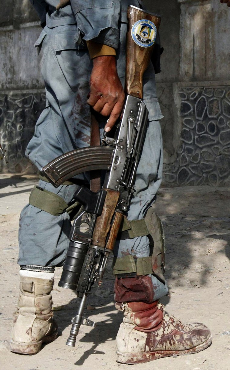 Image: Blood is seen on the leg of an Afghan policeman after a suicide bomb attack near a building used by the Office of the United Nations High Commissioner for Refugees (UNHCR) in Kandahar