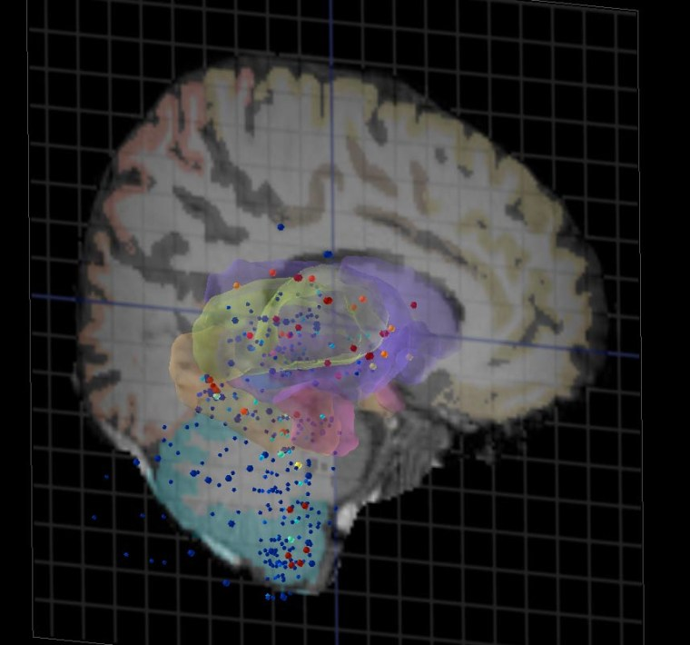 A 3-D rendering showing the expression a single gene across the human brain, revealing areas with higher (red) and lower (blue) expression.
