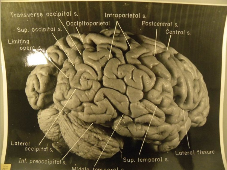 Publishedphotographs of Albert Einstein's brain reveal that the brilliant physicist had extra folding in his brain's gray matter, the site of conscious thinking.