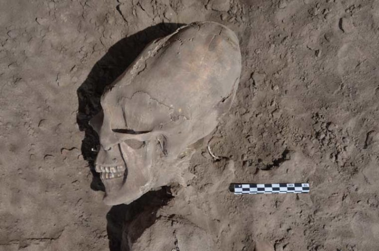 Although cranial deformation and dental mutilation were common features among the pre-Hispanic populations of Mesoamerica and western Mexico, scientists had not previously seen either in Sonora or the American Southwest.