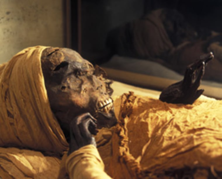 The mummy of Seqenenre Tao II, shown here, was among 3,000 specimens analyzed for cause of death. The mask shows the marks from the axe blow and the two spear thrusts that brought about his death.