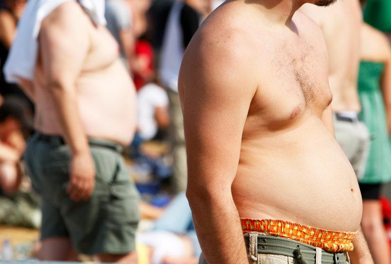 Image: Obesity