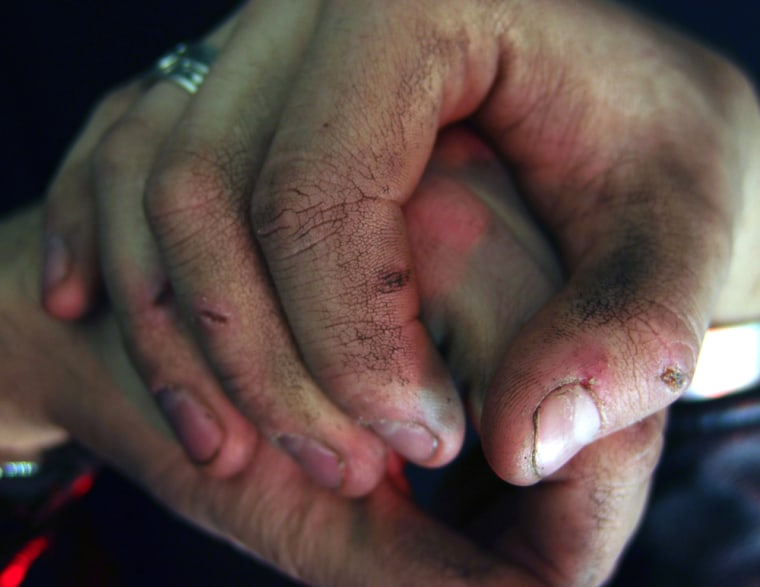 Image: Dirty hands
