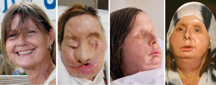 L-R: Charla Nash is pictured before the 2009 chimp attack; recovering after the attack; shortly after her May, 2011 face transplant; and in November, 2011.