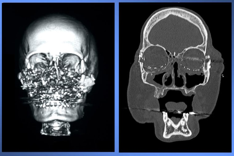 This is a  CT scan photo, supplied by Cleveland Clinic, of Connie Culp, after an injury to her face led her to become the first face transplant patient in the United States, left, and  after the surgery, right.  Culp underwent the surgery at the Cleveland Clinic in December 2008.  Culp spoke to the media at a news conference at the Cleveland Clinic in Cleveland, Ohio on Tuesday, May 5, 2009. The 46-year-old mother of two lost most of the midsection of her face to a gunshot in 2004.  (AP Photo/Cleveland Clinic-HO)