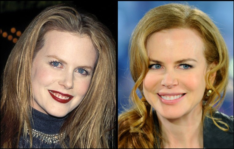 """Nicole Kidman, 1997  Nicole Kidman makes an appearance on NBC's """"Today"""" show to talk about her new movie """"Nine"""" in New York, on Monday, Dec. 14, 2009."""