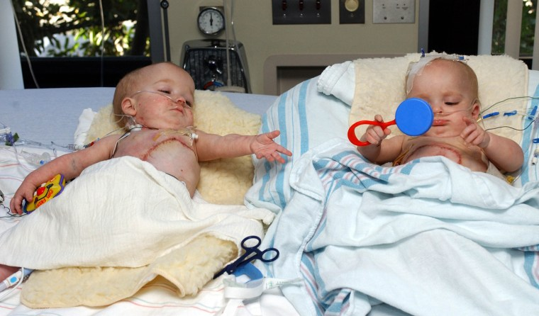 """One-time conjoined twin, 9-month-old """"Baby """"A"""" (left) reaches for a play toy from her sister """"Baby B""""  during their recovery period 5 days after their historic 26-hour surgery at Childrens Hospital Los Angeles. Both Baby """"A"""" and """"B"""" are doing fine in photo taken Sept.16, 2003.  (HO/Photo by Bob Riha, Jr./Childrens Hospital Los Angeles (CHLA)."""