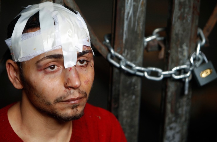 Image: An injured pro-Mubarak supporter is detained by anti-government demonstators at an underground metro station in Cairo