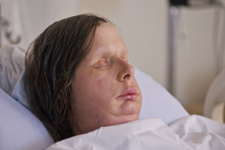 BRIGHAM AND WOMEN'S HOSPITAL, BRIANNA NASH VISITS MOTHER CHARLA NASH FACE TRANSPLANT RECIPIENT IN ROOM
