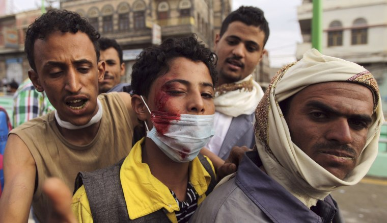 Image: A protester looks to the camera after sustaining injuries from a confrontation with riot police who fired tear gas at them outside the U.S. embassy in Sanaa