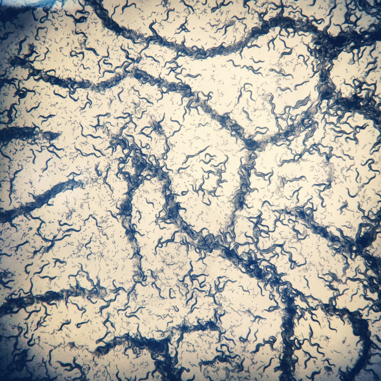 C. instagram Meredith Wright '13 Department of Molecular Biology (Murphy Lab) Contact: mgwright@princeton.edu Caenorhabditis elegans (C. elegans) worms are stored on agar plates covered with a lawn of E. coli bacteria as their food source. Sometimes when the C. elegans have consumed all of the bacteria, they begin to clump together as seen in this image. I found the pattern on this plate particularly lovely, and was able to capture it with my cell phone by holding the lens of my phone's camera up to the microscope eyepiece. I've since shared the photo on social networking sites and have had friends who've never been interested in biology ask me more about my work because of this photo. To me, this image represents the simple pleasure of finding something beautiful when you don't expect to, and it shows how easy it is to connect science with new audiences by simply clicking 'share.'