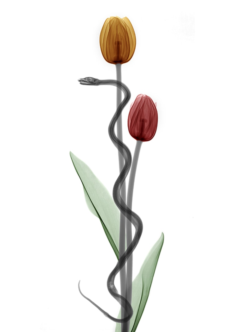 Rod of Asclepius, conceptual X-ray